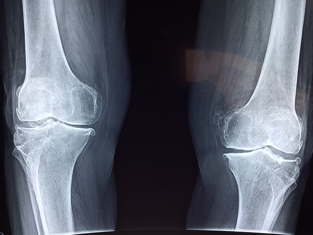 joint health x-ray of knees